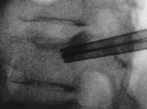 fractura_vertebral_2