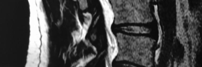 Tratamiento percutáneo mínimamente invasivo de la degeneración discal.